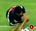 巴西联赛恐怖画面 球员高速突破摔倒折断手臂