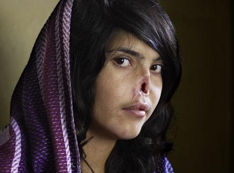 年度照片:遭割鼻的阿富汗女孩阿伊莎