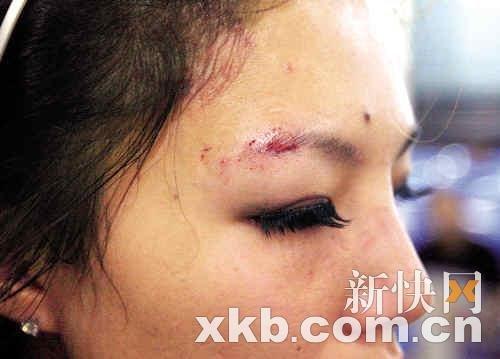 伤势最重的拉拉队员鼻骨骨折,眉骨被打爆。新快报记者 毕志毅/摄