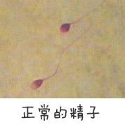 正常的精子