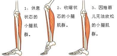 您的肌肉什么时候爱抽筋?看看下面的内容? - 和蔼一郎 - 和蔼一郎