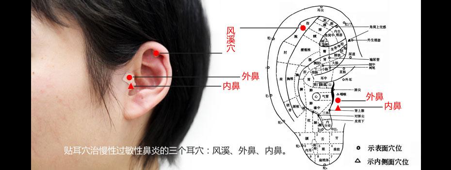 贴耳豆治疗过敏性鼻炎