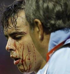 乌拉圭不敌英格兰 悍将浴血赛场